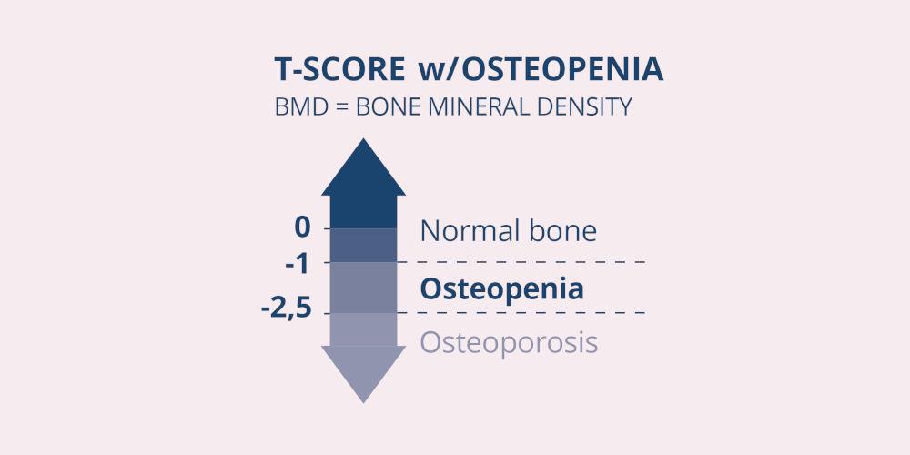 Osteopeni t-score mellem -1 og -2,5